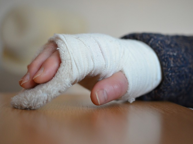 Hand Fractures Los Angeles